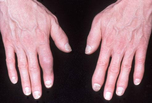 artritis psoriasica